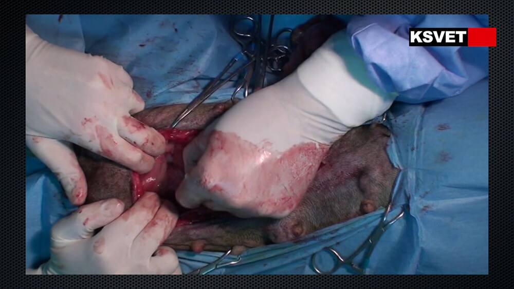 OVH comprendida en hernia inguinal, reparación del saco, nodulectomia y mastectomía