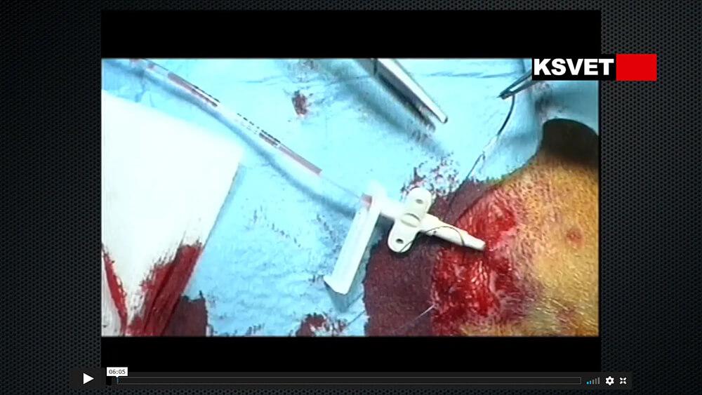 Cateterismo venosos central