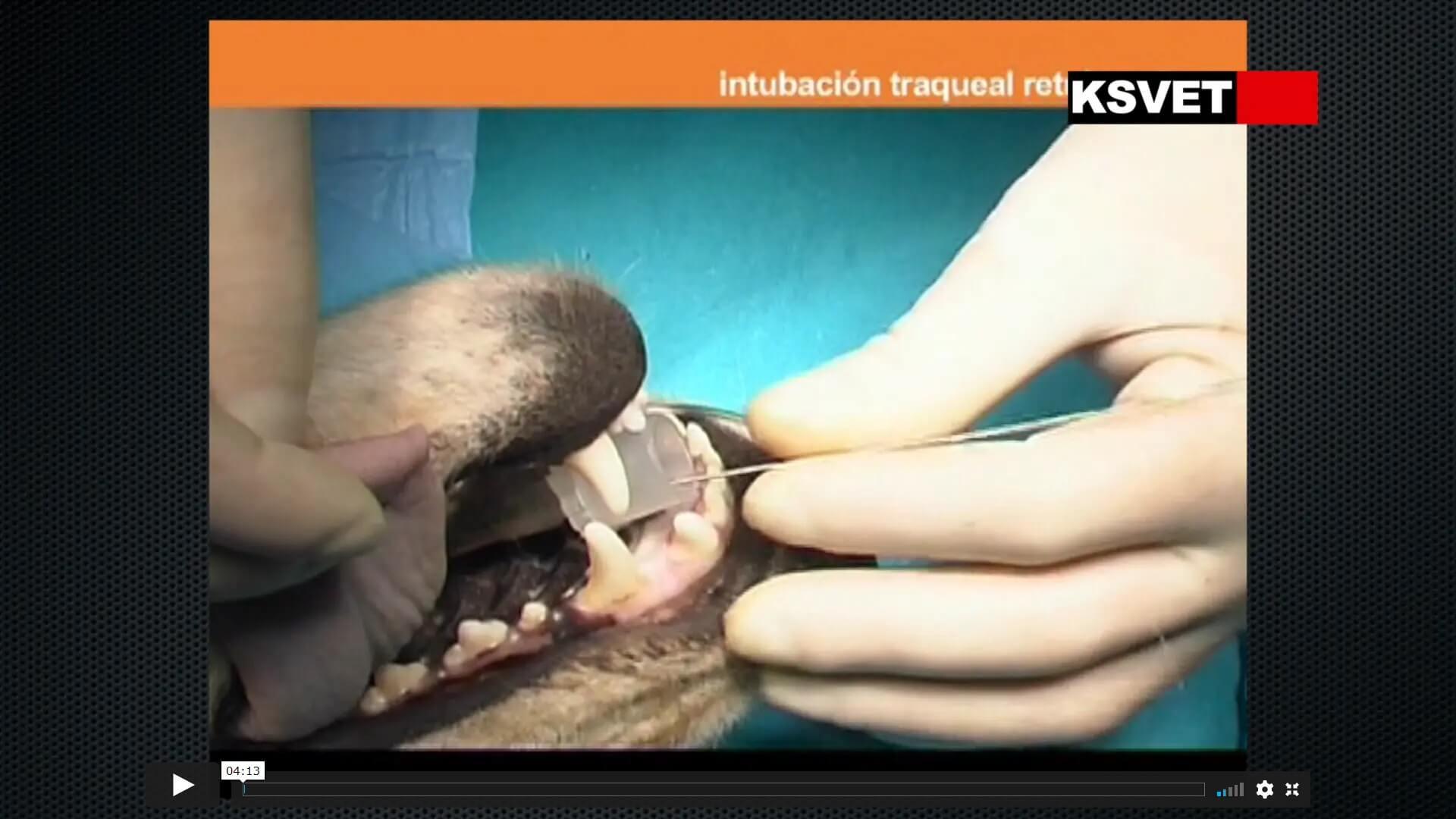 Intubación traqueal retrógrada